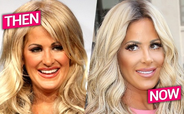 kim-zolciak-nose-job-pic-pp